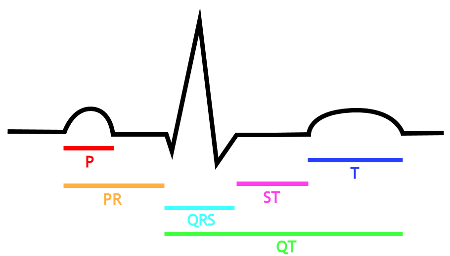 Drawing of the EKG, with labels of intervalsP=P wave, PR=PR segment, QRS=QRS complex, QT=QT interval, ST=ST segment, T=T wave.